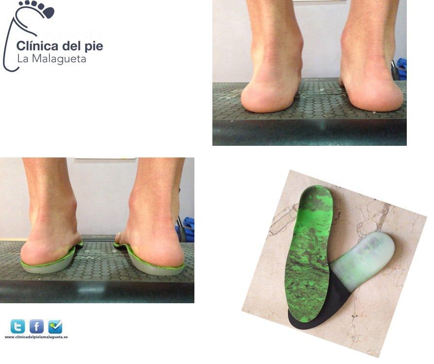 plantillas_3d_malaga_clinica_del_pie_la_malagueta_podologo_malaga
