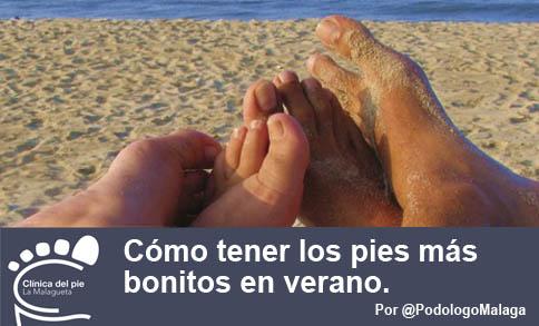 Pies_verano_podologo_en_malaga