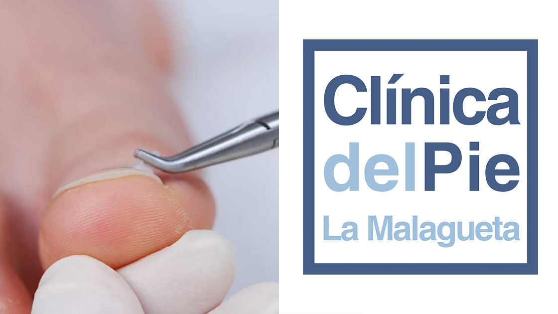 Podologo en Malaga cabecera tratamiento uña clavada