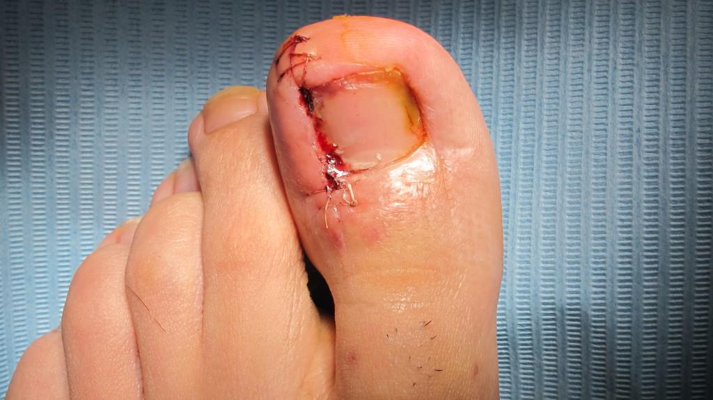 Cirugia podologo malaga para tratamiento uña encarnada