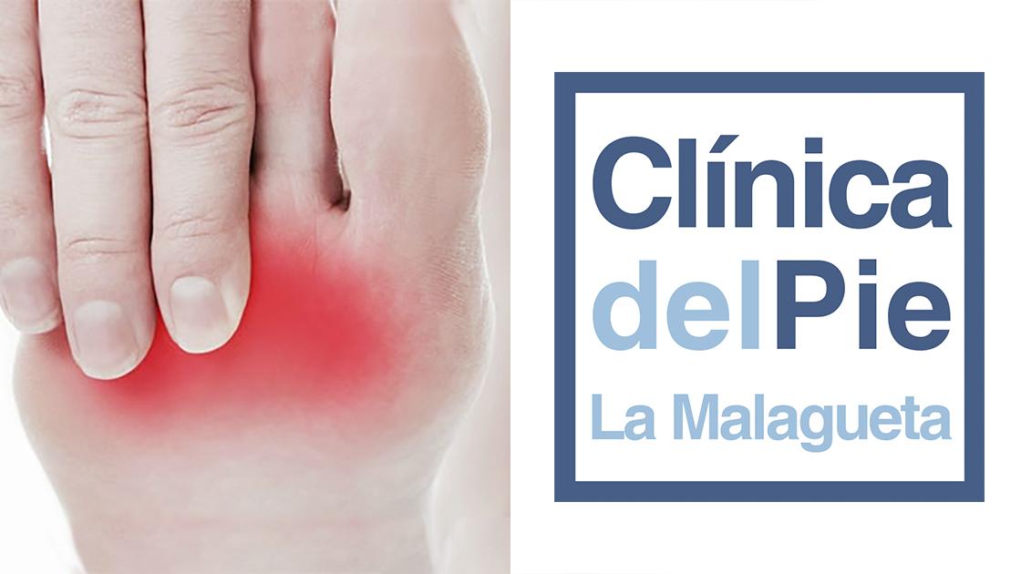 Cabecera neuroma Morton podologo en Malaga tratamiento