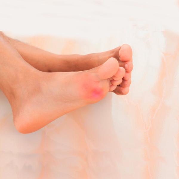 Neuroma morton tratamiento podologo malaga