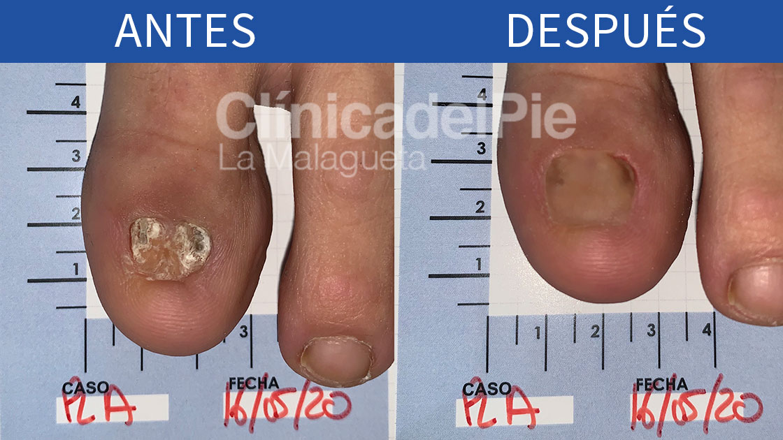 Ejemplo hongos en uñas de los pies